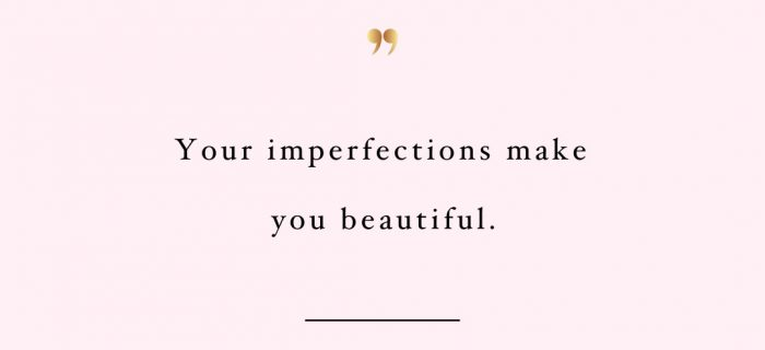 Your Imperfections Make You Beautiful | Wellness And Self-Love Motivational Quote